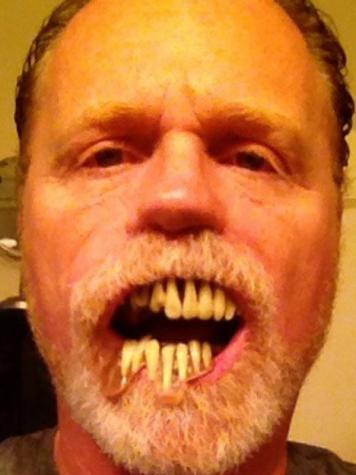 Zombie fangs